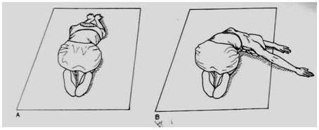 4,慢慢用手将身体从侧弯的地方向凸起一边侧面爬行保持这个姿势做图片