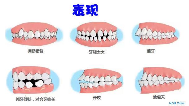 关于牙不齐的表现网上有一些图片供大家参考,常见的有牙齿拥挤错位,相反情况就是牙缝过大;上牙太突我们俗称龅牙,下牙包住上牙俗称地包天,还有前牙咬不上我们叫开合。缺牙时间太长不去镶,就会像图上那样两边牙都倒了,对面的牙伸长,特别影响进食。