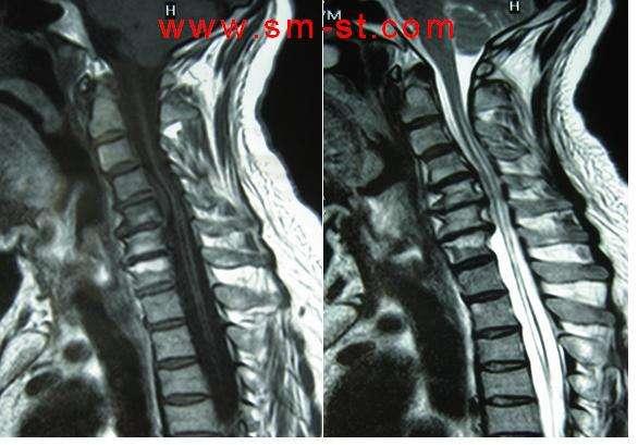上图为chiari畸形,合并脊髓圆锥的畸胎瘤,因为是畸形所以常常合并