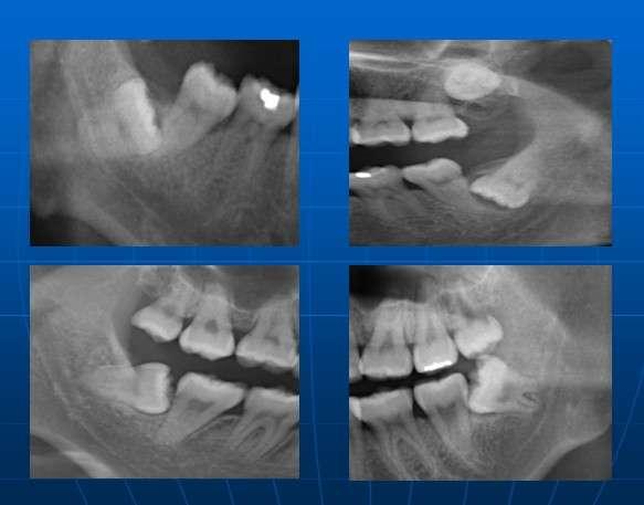 炎的发生,引起牙龈肿痛,颌下淋巴结肿大,头颈部神经痛,面部间隙