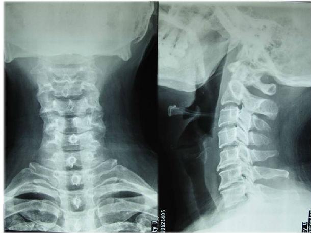 确诊颈椎病,要做哪些检查图片