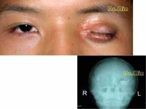 详情    上图是一先天小眼球患者,在当地行眼球摘除并植入眼台手术,由