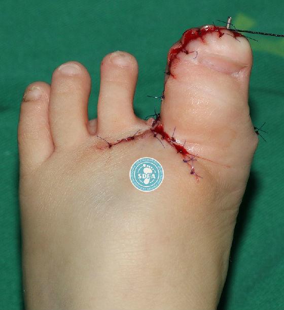 足部足部手术步骤