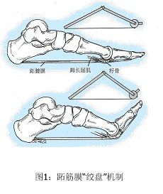 足底(跖)筋膜炎如何治疗?_潘张翼