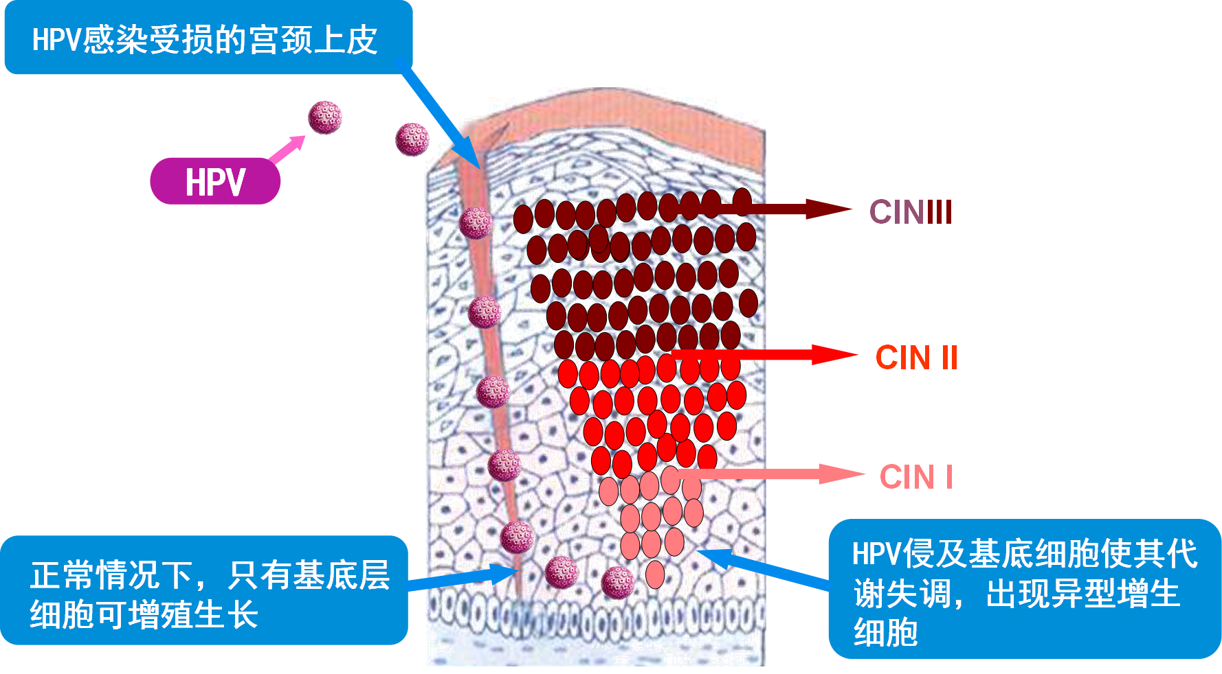 HPV感染就一定会发展成宫颈癌吗?