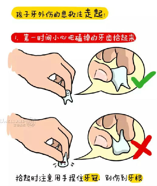 孩子牙外伤的急救方法