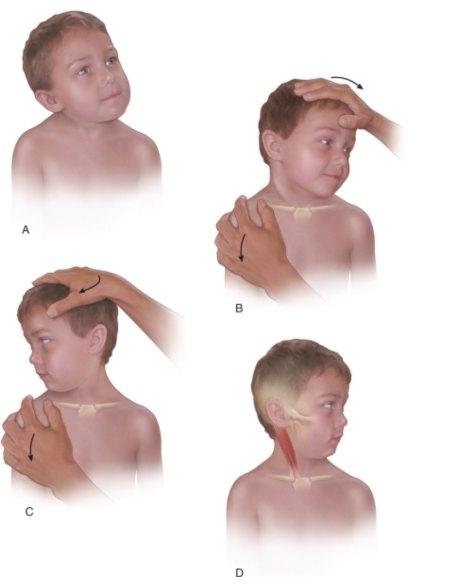 小儿肌性斜颈手法按摩