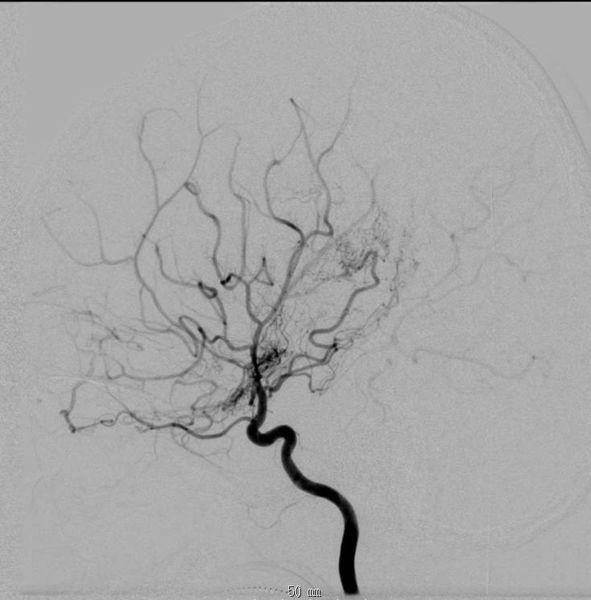 血管)的形成,血管网在脑血管造影上像一缕烟雾在空气中升起(图).