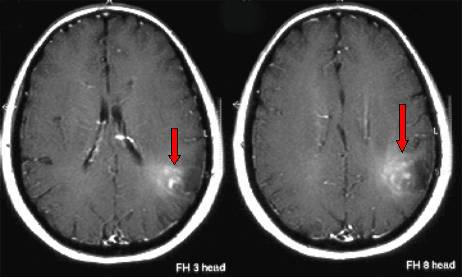 脑瘤的多数 胶质细胞瘤