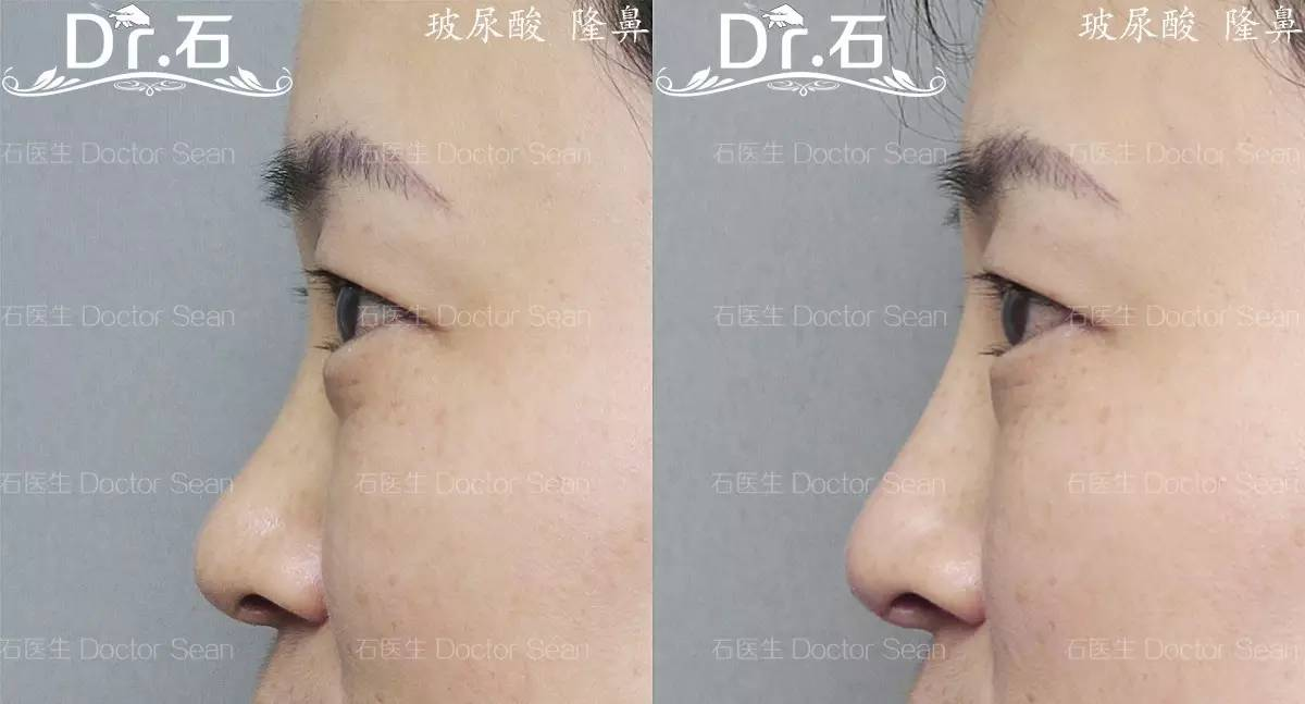 手术隆鼻常用的人工材料主要有固态硅胶,膨体材料.