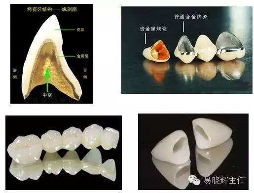 烤瓷牙对做核磁共振究竟影响多大?