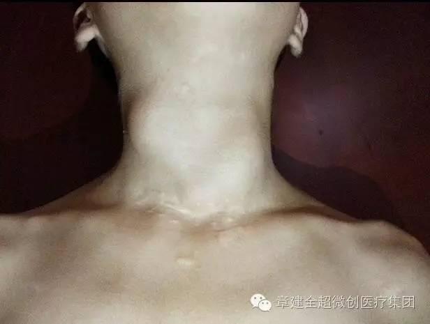 儿童甲状腺结节的新型治疗