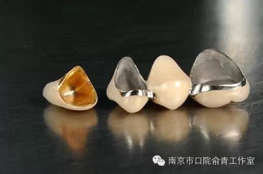 """烤瓷牙什么材料好_""""牙套""""是什么?又有哪些种类?_俞青_中华康网"""
