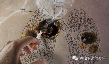 肺癌防治的基本知识_郭彦伟_中华康网