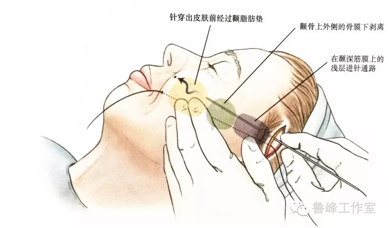 紧贴颞深筋膜浅层分离至颧骨上,在颧骨区域开始行骨膜下剥离,这是为了