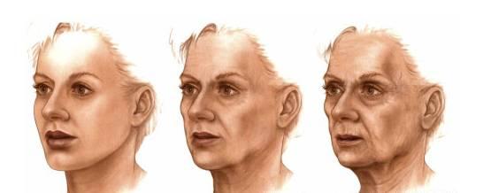 面部衰老的成因   真皮层变薄,毛细血管和血管变得更明显;随真皮层支撑结构的退化,皮肤失去其饱满度、弹性和吸收水分的能力-细纹和皱纹开始出现。   表现:皮肤粗糙干燥,不规则色素沉着,松弛,皱纹。   面部抗衰老   一、无创-微创   无创:射频、光子、激光、果酸等。   1、射频:   射频美容给皮肤进行电加热,使皮肤发生热效应从而引起皮肤结构的变化,同时还可以使皮下胶原蛋白重新排列并使其再生,最终达到除皱和嫩肤的作用。