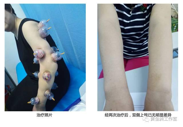 癌术后复查,右腋下见淋巴结肿大,正常吗