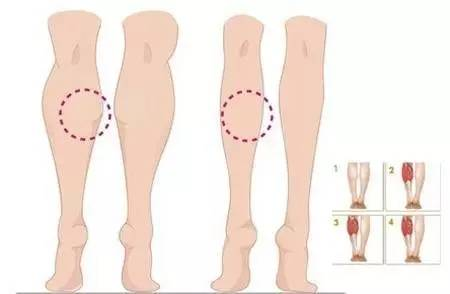 針通過注射肉毒素,15分鐘即可完成注射,短期內即可達到理想的瘦腿效果