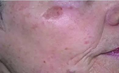 你知道生成斑的原因有哪些吗