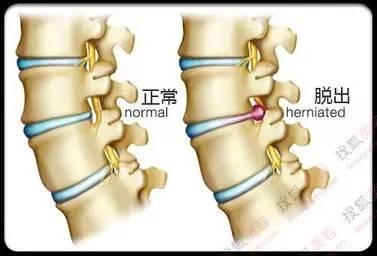 L4 5L5 S1椎间盘轻度膨出 快速问医生 免费咨询