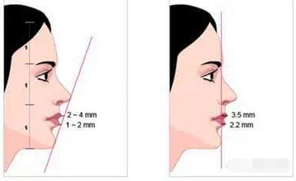 怎样判断下巴是否短缩?
