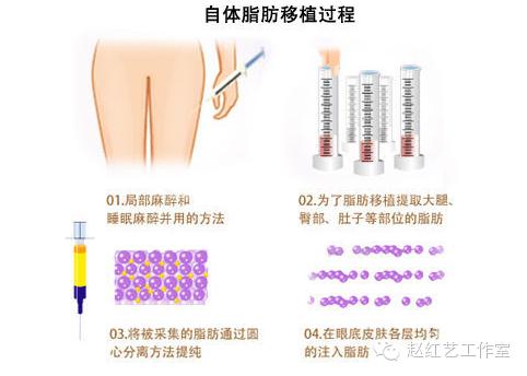 自体脂肪移植填充注射除皱