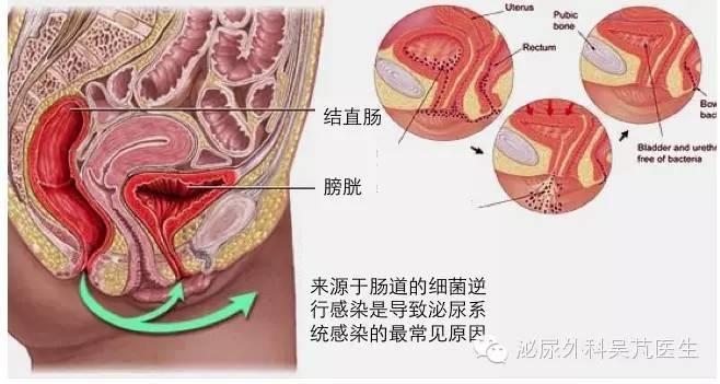 尿路感染的8个常见问题
