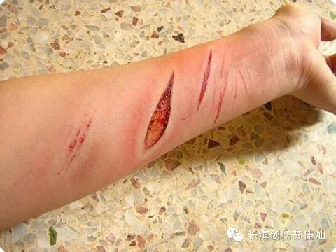picsart素材伤口照片伤疤