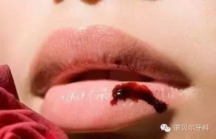 秋季嘴唇发干是什么原因?