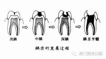 根尖周围组织的炎症,主要有牙髓炎往根尖方向发展引起的,症状是持续