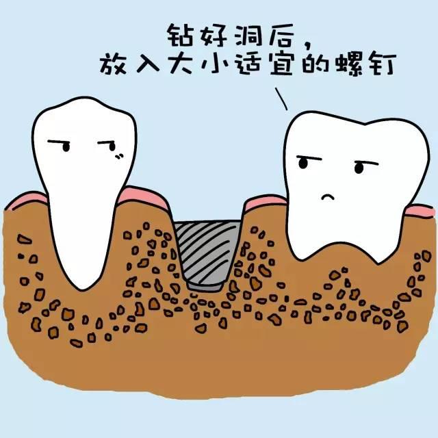 种植牙的过程是怎样的?
