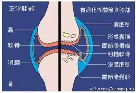 性爱网站是多少_大部分患者膝盖疼,都是因为膝关节退行性变