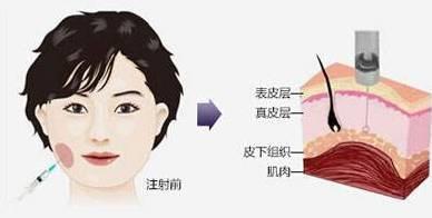 打瘦脸针后遗症吗