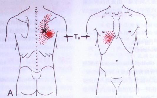10%的概率可放射至肩胛骨内下缘疼痛且向近脊柱侧疼痛