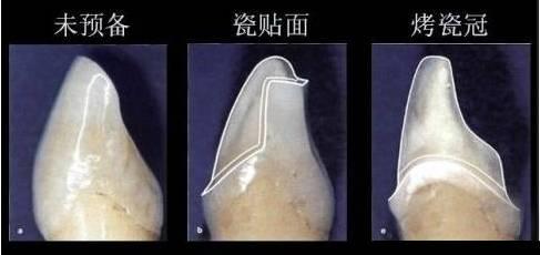 瓷贴面跟烤瓷牙相比有什么优点?
