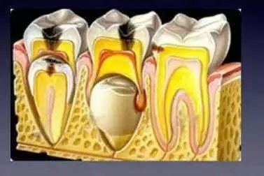 如果虫牙不治继续发展,它会影响到牙髓,那可能会出现疼的症状;再往后