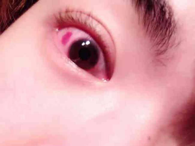 眼睛充血_个人主页 医生文章 详情    眼睛充血笼统的概念认为眼白发红.