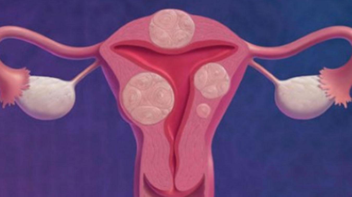 什么是子宫肌瘤?