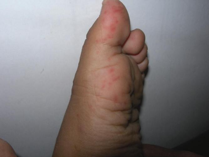 手足 口 病 初期 症状 大人