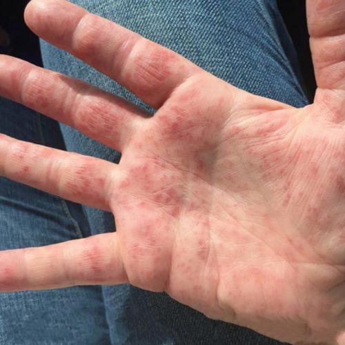 手足 口 症状 大人 病