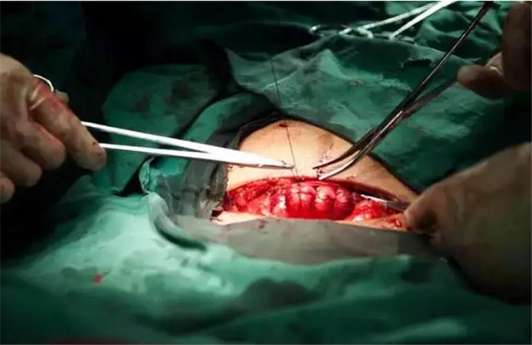 剖腹产刀口好的图片_剖腹产图片_剖腹产症状表现图片大全_有来医生