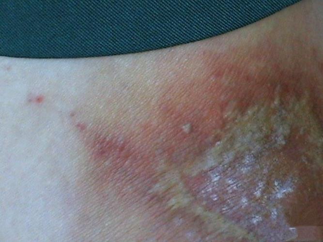 治螨虫过敏_虫咬性皮炎的症状与分型图片_有来医生