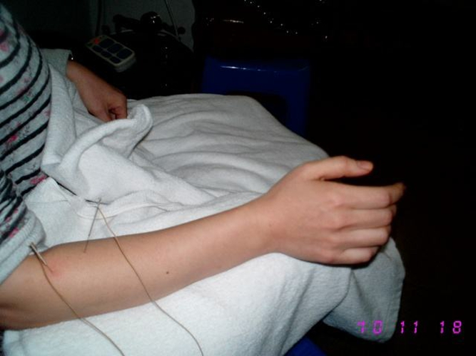 网球肘自我治疗方法_网球肘自我治疗的图片_有来医生