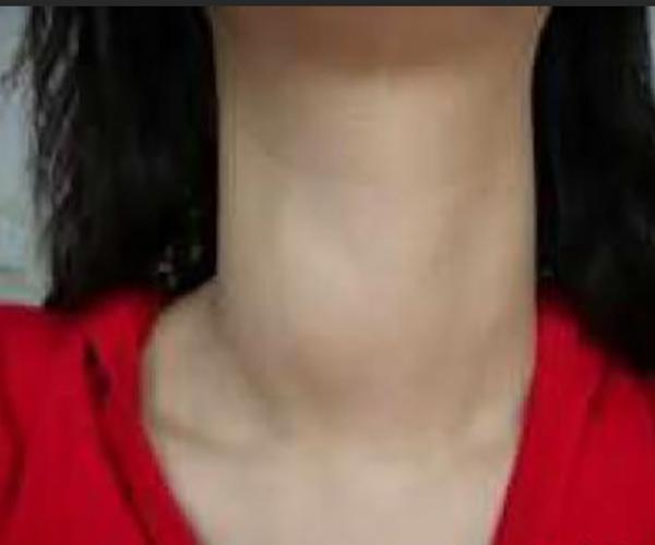 桥本氏甲状腺炎甲减_亚急性甲状腺炎的症状图片_有来医生