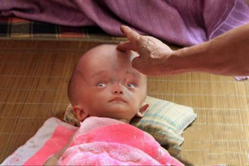 小儿脑膜炎后遗症_男孩脑炎图片_有来医生