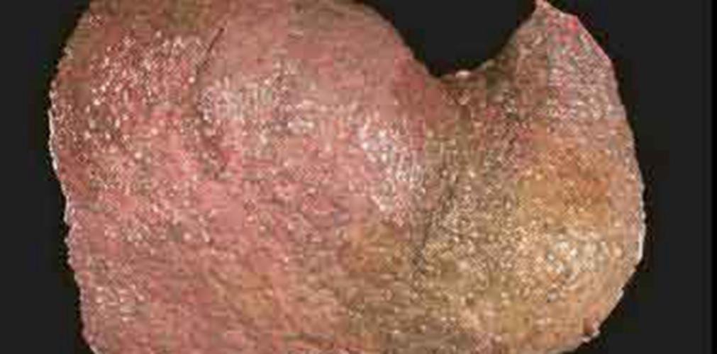 脂肪肝真实图片_酒精肝图片_酒精肝症状表现图片大全_有来医生