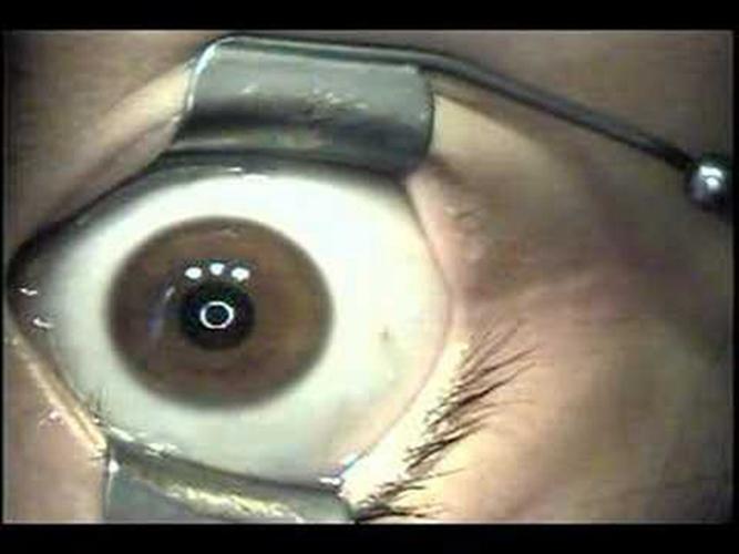 广州做近视眼手术_近视眼手术图片_近视眼手术症状表现图片大全_有来医生