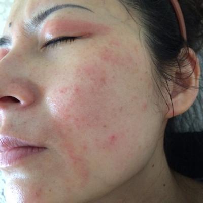 аллергия на крем нивея питательный дневной крем