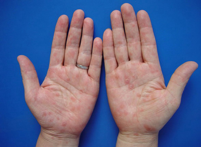 清晰阴部图片_腹部斑疹性二期梅毒疹感染图片_有来医生