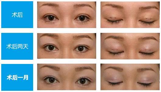 双眼皮开眼角 放大双眼黄金组合(2)